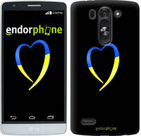 "Чехол на LG G4 Stylus H540 Жёлто-голубое сердце ""885u-242-2448"""