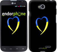 "Чехол на LG L70 Dual D325 Жёлто-голубое сердце ""885u-201-2448"""