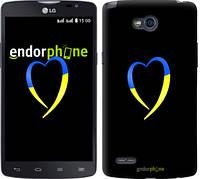 "Чехол на LG L80 Dual D380 Жёлто-голубое сердце ""885u-332-2448"""