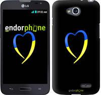 "Чехол на LG L90 Dual D410 Жёлто-голубое сердце ""885u-202-2448"""