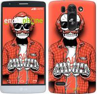 """Чехол на LG G4 Stylus H540 Скелет в очках """"4192u-242-2448"""""""