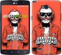 """Чехол на LG L80 Dual D380 Скелет в очках """"4192u-332-2448"""""""