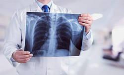 Правда ли, что МРТ и рентген опасны для здоровья