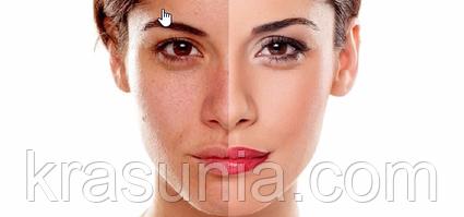 Лазерный пилинг – лучшая помощь для зрелой и уставшей кожи