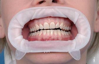 OptraGate (Оптрагейт) ретрактор губ и щек, набор 80 шт.