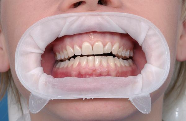OptraGate (Оптрагейт) ретрактор губ и щек, набор 80 шт.  NaviStom