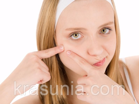 Как решить проблему угревой сыпи у подростков - ответ дает косметолог