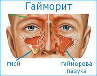 Гайморит, кисты гайморовых пазух - лечение без лекарств и проколов!, фото 1