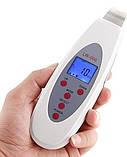 Скрабер ультразвуковой портативный LW-006 для ультразвукового пилинга и ухода за лицом, фото 2