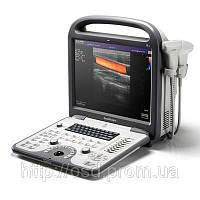 Портативный ультразвуковой сканер sonoscape S6 с тремя датчиками в комплекте, фото 1