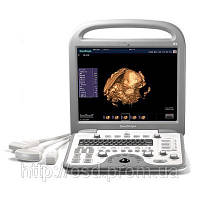УЗИ аппарат SonoScape S8 + 3 датчика, фото 1