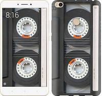 """Чехол на Xiaomi Mi Max 2 Кассета """"876c-994-10409"""""""