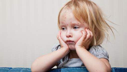 Ветряная оспа у детей. Признаки и лечение ветряной оспы с БАД НСП.