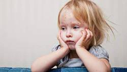 Вітряна віспа у дітей. Ознаки і лікування вітряної віспи з БАД НСП.