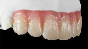 Препарирование опорных зубов для оксида циркония