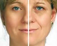 Ботомакс– маска нового поколения,Ботокс в спреї - маска для усунення мімічних зморшок шляхом міорелаксації