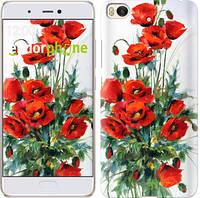 """Чехол на Xiaomi Mi 5s Маки """"523c-395-571"""""""