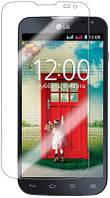 Защитная пленка для LG Optimus L90 D405 - Celebrity Premium (clear), глянцевая