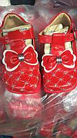 Туфли детские лаковые для маленькой принцессы от 9месяцев