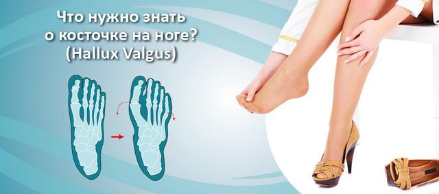 Что нужно знать о косточке на ноге (HALLUX VALGUS)!