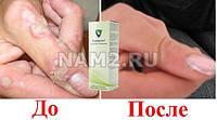 Papiderm - капли от папиллом и бородавок(Папидерм)