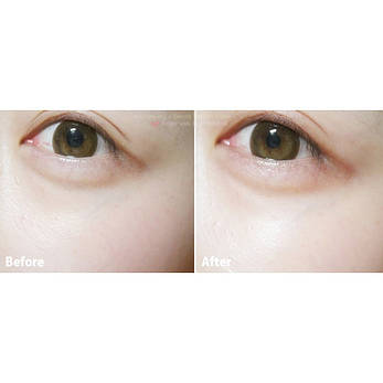 Гидрогелевые патчи вокруг глаз с экстрактом улитки., фото 2