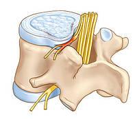 Почему болит спина: что надо знать о протрузии позвоночника
