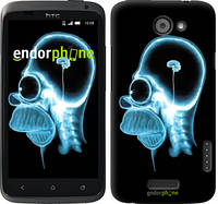 """Чехол на HTC One X+ Гомер. Томография """"652c-69-6129"""""""