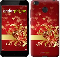 """Чехол на Xiaomi Redmi 4X Ажурные сердца """"734c-778-535"""""""