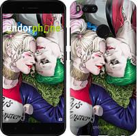 "Чехол на Xiaomi Mi A1 Звёздное небо ""167c-1132-535"" Джокер и Харли Квинн v2 , Синий"