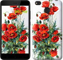 """Чехол на Xiaomi Redmi 4X Маки """"523c-778-535"""""""