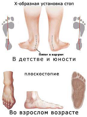 386d6e15c Как выбрать ортопедическую обувь для детей: пять подсказок ортопеда ...