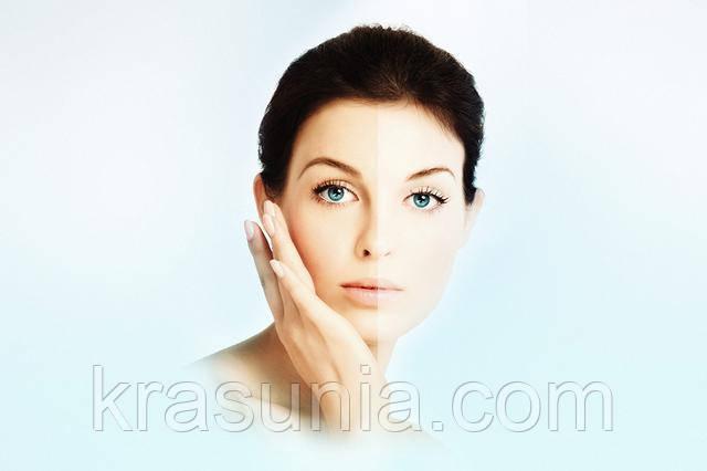 Можно ли справиться с гиперпигментацией кожи?