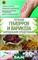 Зинченко Л.Н. Лечение геморроя и варикоза народными средствами