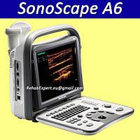 Aппарат УЗИ Sonoscape A6 ультразвуковая диагностическая система