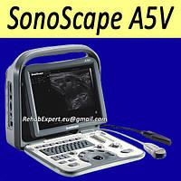 Aппарат УЗИ Sonoscape A5V ультразвуковая диагностическая система