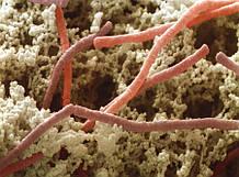 Бактериальный лизат ОМ 4