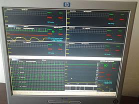 Оснащение медоборудованием Военно-медицинского клинического центра Южного региона(проект мерии и горздравотдела г. Одессы)) 2