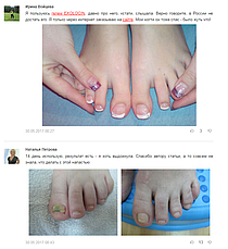 Экзолоцин - Гель від грибка нігтів і стоп, фото 3