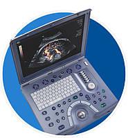 Ультразвуковой сканер GE Voluson E