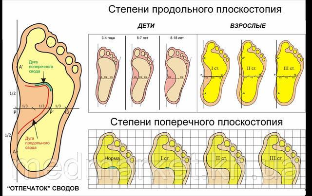 Продольное и поперечное плоскостопие и его лечение