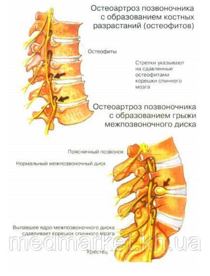 http://www.spina.co.ua/lechenie/img/osteohandroz5.jpg