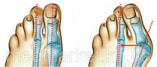 Вальгусное отклонение 1-го пальца стопы