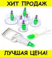 Вакуумные банки для массажа 6 шт., фото 1