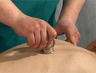 Вакуумный (баночный) массаж спины