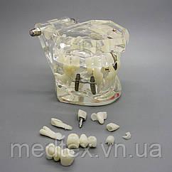 Демонстрационная модель зубов