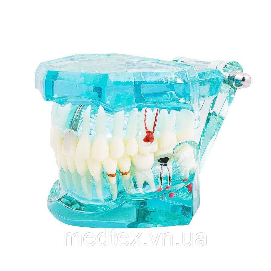 Модель верхньої та нижньої щелеп для стоматологів