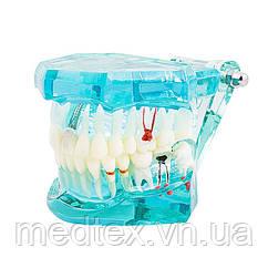 Модель верхней и нижней челюстей для стоматологов