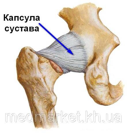 http://travmaorto.ru/files/image/hip/hip_fx/2.jpg