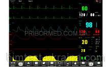 Монитор пациента ОБЕРЕГ 120D